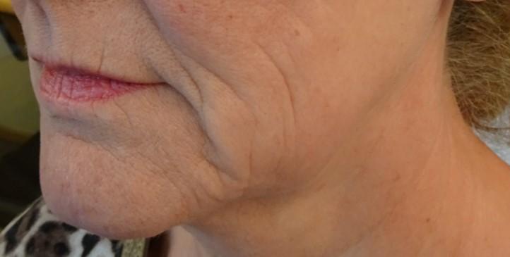 hifu behandeling kaaklijn voor