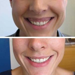 botox gummy smile jc kliniek