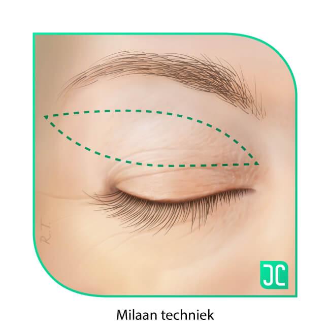 ooglidcorrectie milaan techniek incisie