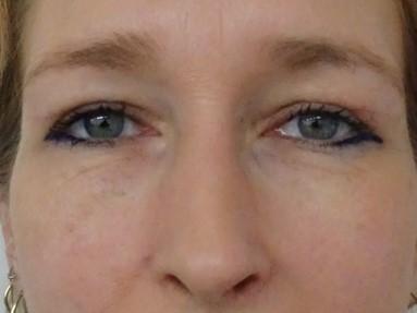 ooglidcorrectie na vrouw 3