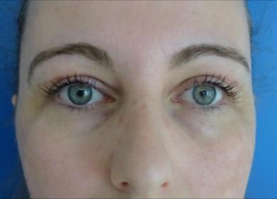 ooglidcorrectie na