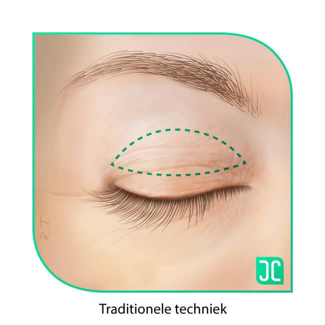 ooglidcorrectie traditionele methode incisie