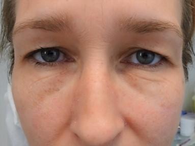 ooglidcorrectie voor vrouw 3