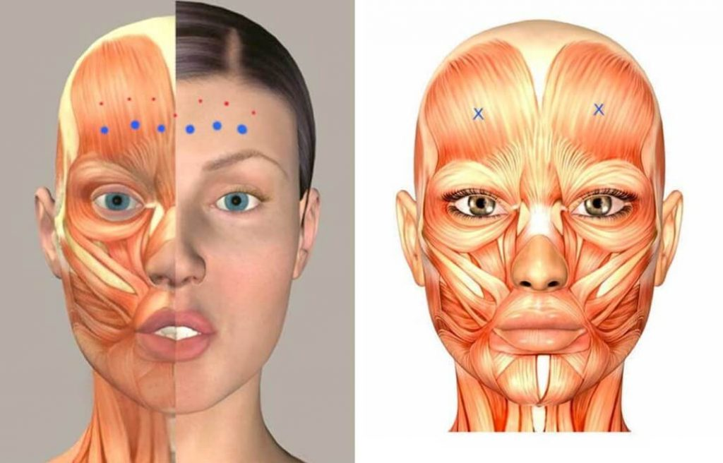 voorhoofdsrimpels-anatomie-jc-kliniek